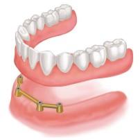 全ての歯を失った方のインプラント治療